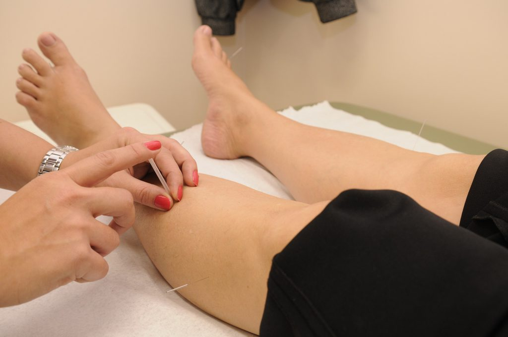 Most Popular Physical Therapy Treatments Explained